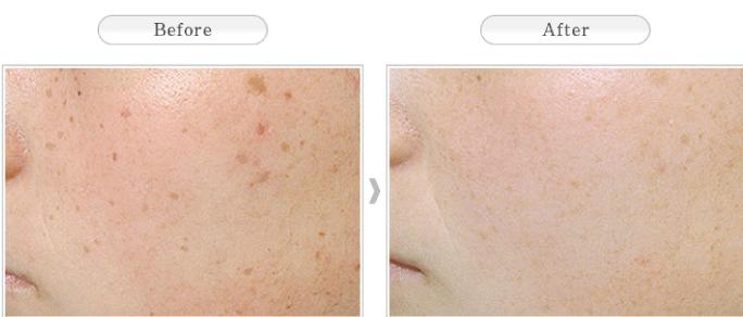 Kết quả hình ảnh cho isis pharma unitone 4 reveal spf20 hình đẹp