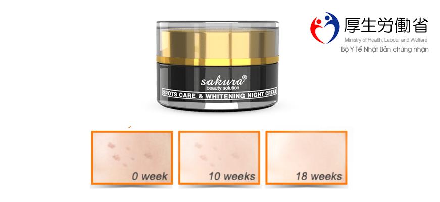 Kem dưỡng trắng da trị nám ban đêm Sakura spots care & whitening night cream
