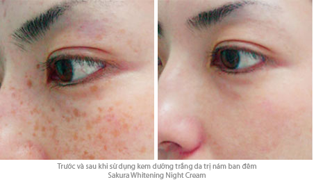 kem tri nam dem Sakura whitening night cream