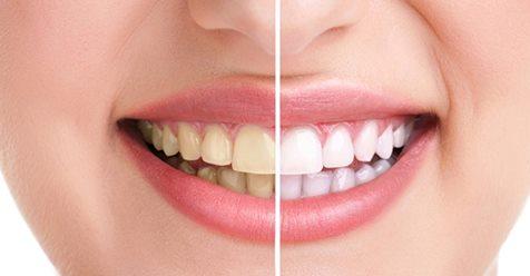 Răng trắng tinh khôi, hết mảng bám chỉ sau hai ngày thực hiện với cách này