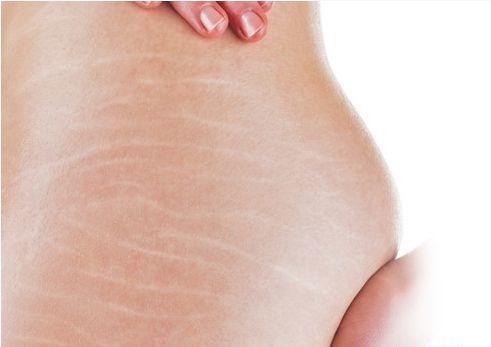 Vết rạn da sau sinh biến mất, nhờ bài thuốc cực đơn giản từ chồng