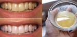 Cao răng, mảng bám biến mất hoàn toàn, răng trắng sáng bất ngờ chỉ 2 lần ngậm ly nước này