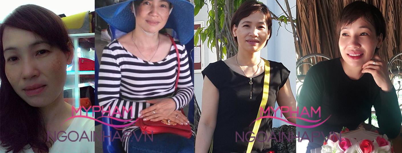 Chị Thu ở Bà Rịa kể chuyện TRỊ SẠCH NÁM SÂU 5 năm khiến bà con trầm trồ