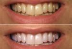 Xem điều kỳ diệu sẽ xảy ra vào sáng hôm sau khi bạn chà vỏ chanh lên răng mỗi đêm trước khi đi ngủ