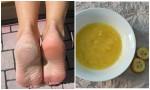 Trị khỏi nứt gót chân, chai sần lâu năm nhờ 1 quả chuối, cách hay nên thử!