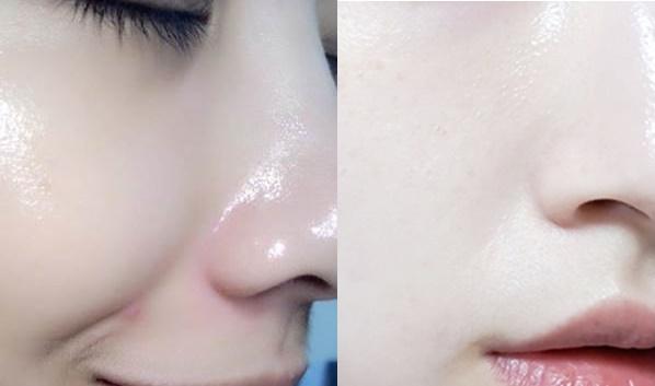 Tập thói quen này mỗi sáng, da mặt lúc nào cũng căng mịn và trẻ hơn 10 tuổi