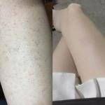 Mẹo trị viêm lỗ chân lông cấp tốc để tự tin đón hè