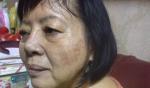 Tôi cũng đã trị sạch nám  15  năm, đến nay 9 tháng sau ngưng lộ trình da vẫn mướt đẹp, không cần collagen
