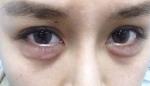 """Mắt """"gấu trúc"""", bọng mắt """"sưng"""" thì làm cách này để giải quyết"""