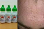 Sau 14 ngày làm theo cách này da bạn sạch mụn bóng loáng và mịn như da em bé