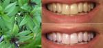 Chà húng quế lên răng theo cách này, mảng bám + ố vàng biến mất, sâu răng đau nhức cũng khỏi sau 3 phút