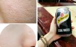 1 lon soda 10k thu nhỏ lỗ chân lông hiệu quả hơn bỏ 10 triệu làm liệu trình