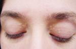 Mụn thịt quanh mắt nhiều đến đâu cũng phải tự khắc biến mất với cách đơn giản này