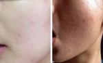 Quy trình 7 ngày đánh bật mụn dưới da không nên bỏ lỡ