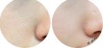 """Ngả mũ """"thán phục"""" với 7 cách giúp thu nhỏ lỗ chân lông mãi mãi không to trở lại"""