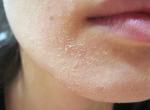 """Mẹo đơn giản """"giải cứu"""" tình trạng bong da, mốc da, khô da quanh cánh mũi khi mùa đông đến cực hiệu quả"""
