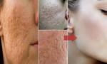 Lỗ chân lông to thế nào cũng giảm đáng kể, cho làn da mịn màng như em bé với phương pháp tự nhiên này
