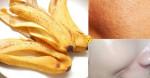Chỉ nhờ VỎ CHUỐI BỎ ĐI lỗ chân lông TO ĐÙNG cũng sẽ MỜ TỊT, LÁNG MỊN, hiệu quả 100%