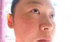BỘ ĐÔI SIÊU TRỊ NÁM – HẾT NÁM TỪ GỐC, căng mướt, không cần uống collagen vẫn trẻ ra 10 tuổi, không tái phát trở lại