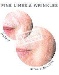 serum-dieu-tri-mun-iSclinical